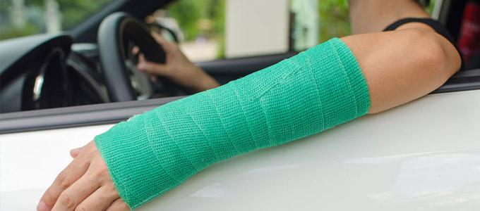 Eine Person mit verletztem Arm im Auto sitzend. Der verletzte Arm ist mit einer Mullbinde umwickelt. Das Bild soll das Thema Krankschreibung symbolisieren.